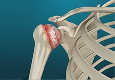 Arthritis of the Shoulder